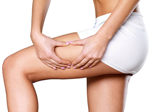 Anti-cellulite Diet – How to Prevent Our Body from Cellulite